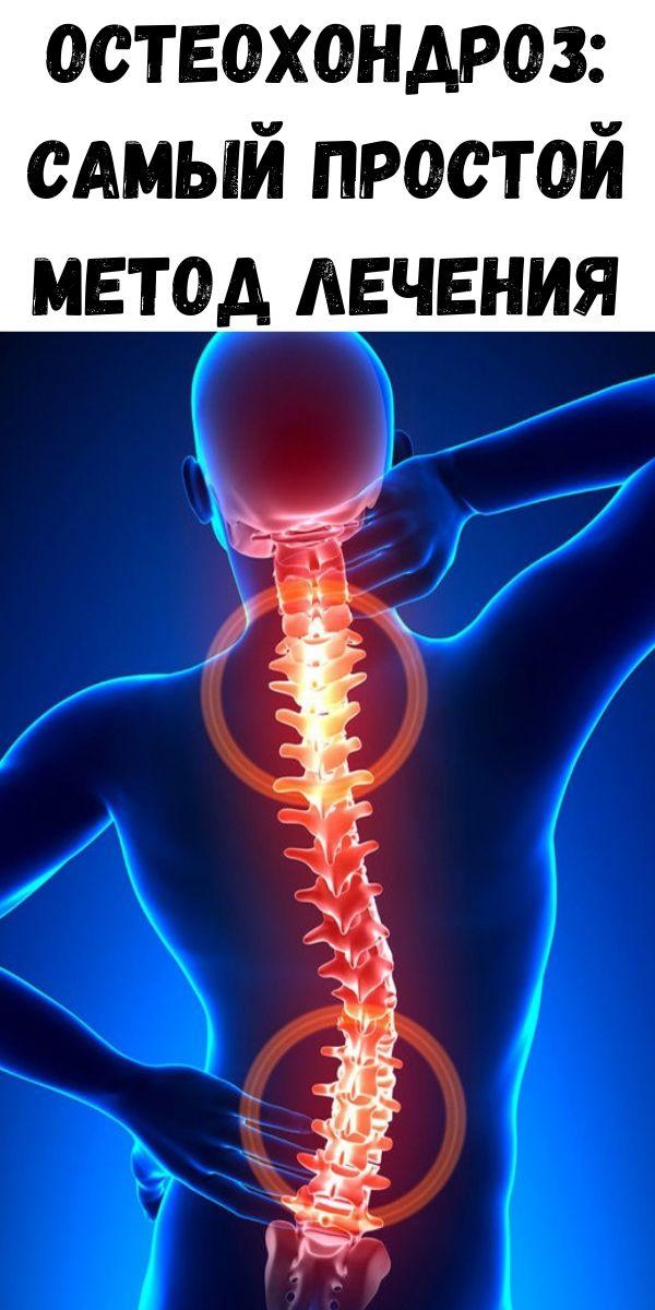 Остеохондроз: Самый ПРОСТОЙ метод лечения