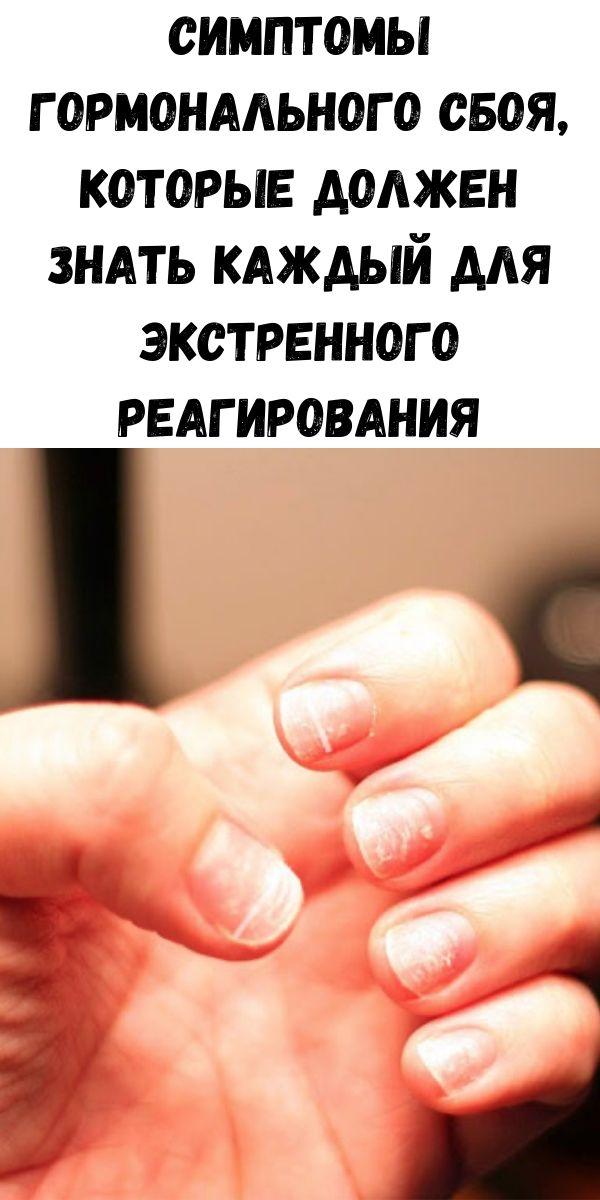 Симптомы гормонального сбоя, которые должен знать каждый для экстренного реагирования
