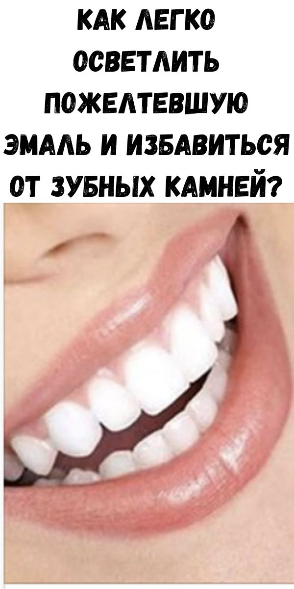Как легко осветлить пожелтевшую эмаль и избавиться от зубных камней?