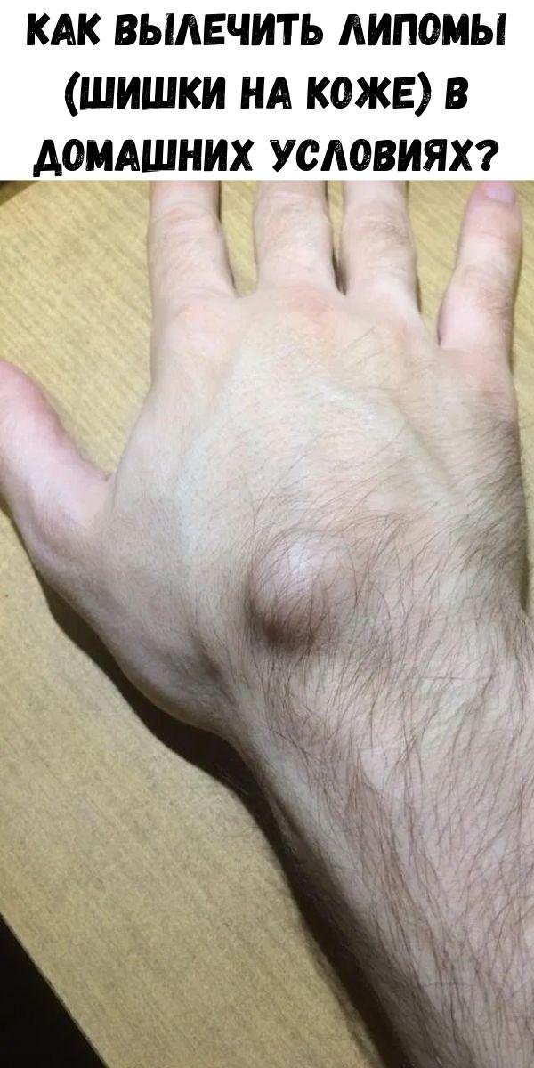 Как вылечить Липомы (шишки на коже) в домашних условиях?