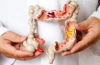 11 признаков того, что у вас синдром раздраженной кишки