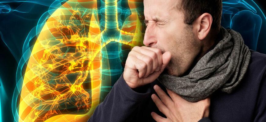 Как дома самостоятельно выявить пневмонию? Главные симптомы заболевания