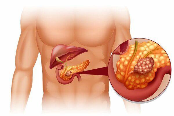 7 очень полезных продуктов, которые снимают воспаления в поджелудочной железе и печени