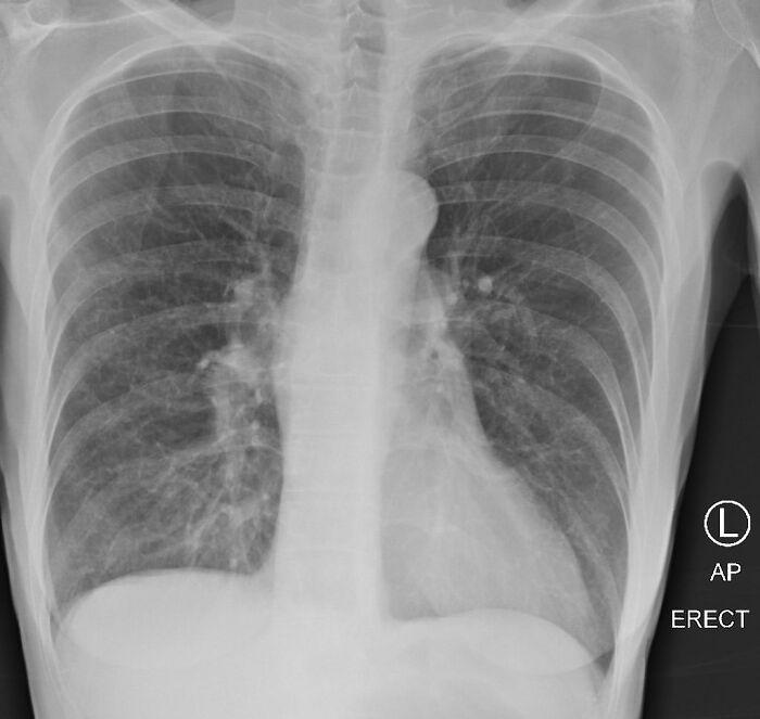 Врач сравнила рентген-снимки здорового, курильщика и больного коронавирусной инфекцией