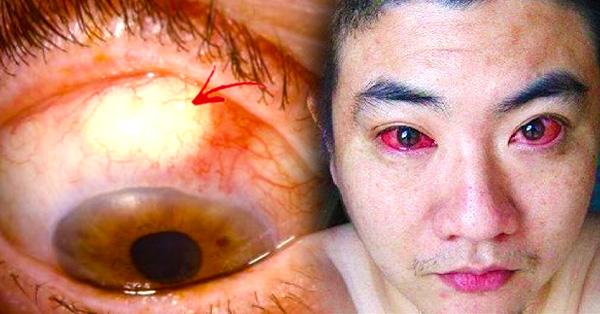 У него рак глаз из-за того, чем мы все занимаемся по ночам