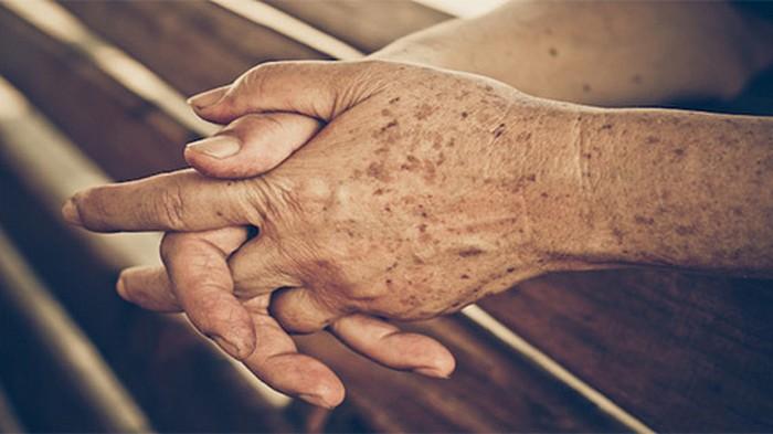 Почему на руках появляются старческие пятна