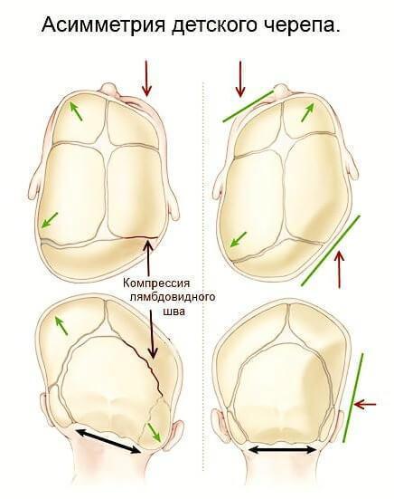 ВНЧС: Как изменения в области одного органа вызывает каскад реакций во всем теле
