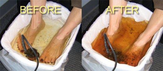 Как очистить организм с помощью ванн для ног?