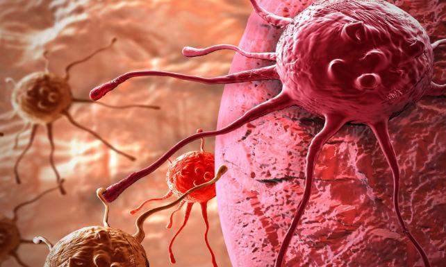 Победить рак можно только, узнав причину его возникновения. Вы будете в шоке, когда узнаете это!