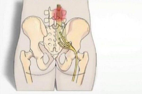 6 способов облегчить боль седалищного нерва.