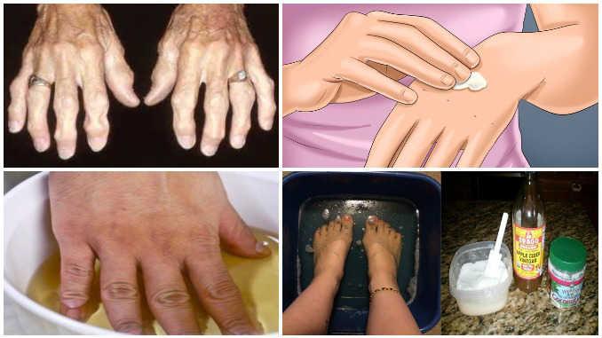 Попробуйте эти народные средства и избавьтесь от артрита и боли раз и навсегда!