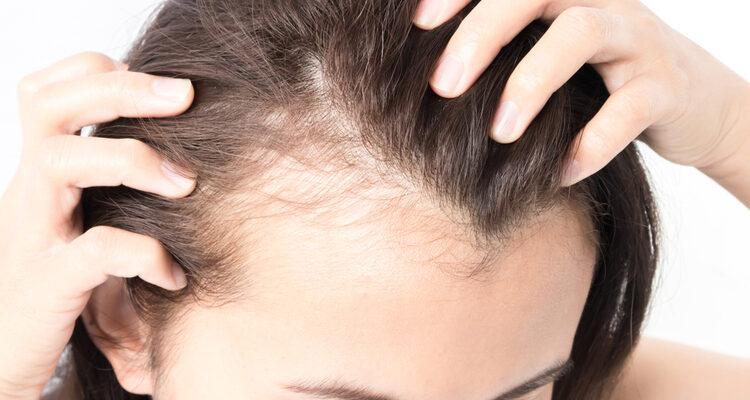 Нанесите несколько капель сыворотки на кожу головы и увидите, как выпавшие волосы отрастут…Удивительно!